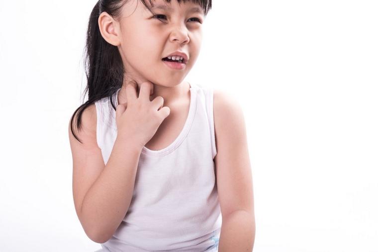 food allergies-rashes