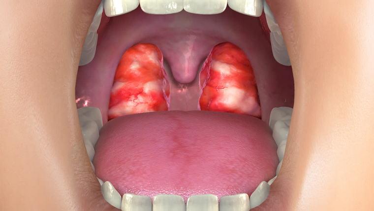 allergies sore throat
