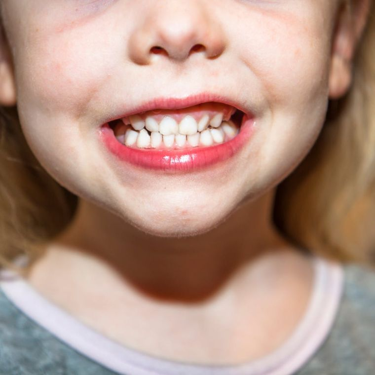 mouth health in children