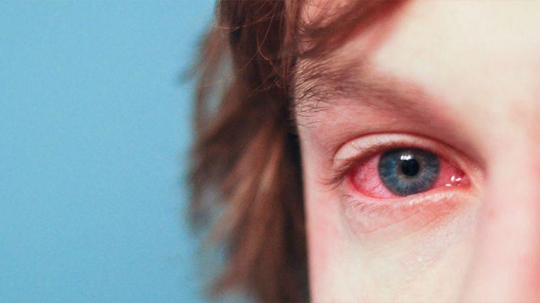 allergic symptoms in children