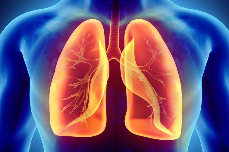 coronavirus effects on the lungs
