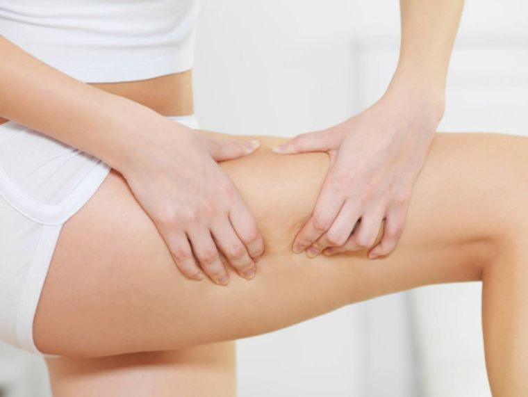 ideas to fight cellulite
