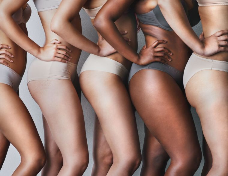 how to avoid cellulite